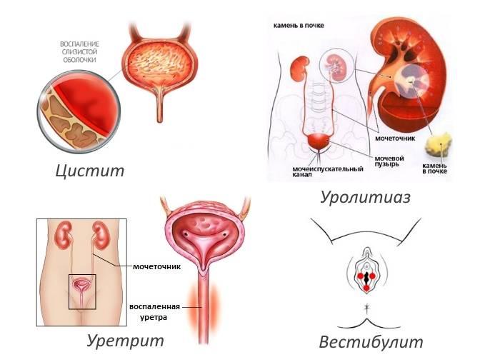 Молочница у женщин боль при мочеиспускании