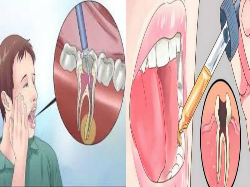 Мертвый зуб болит при нажатии на него