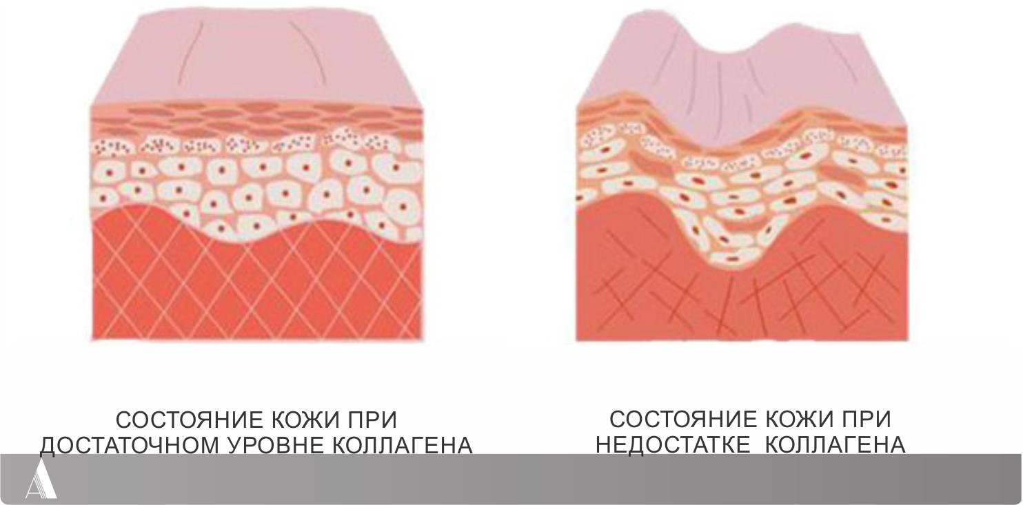 Коллаген и гиалуроновая кислота – как выбрать эффективные средства
