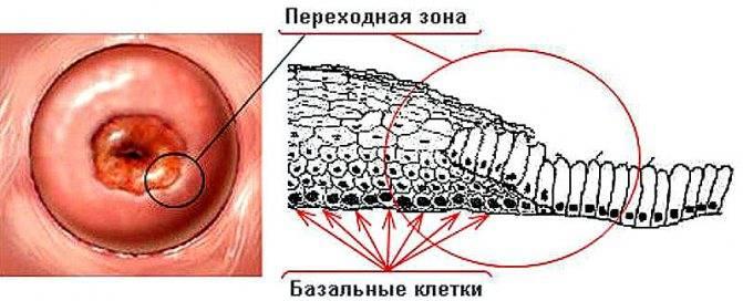 Беременность после прижигания эрозии