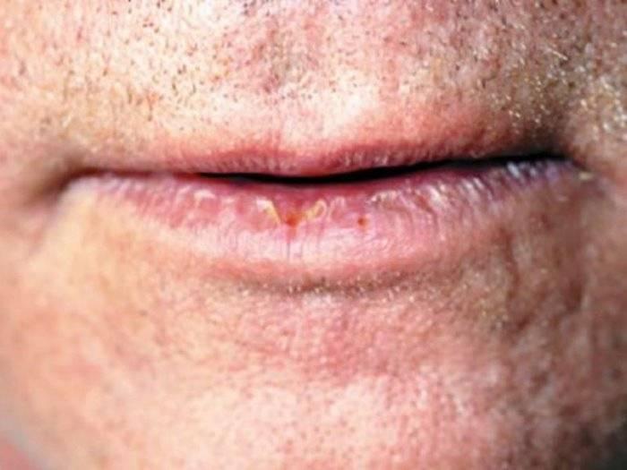 Формы, виды и особенности лечения хейлита на губах