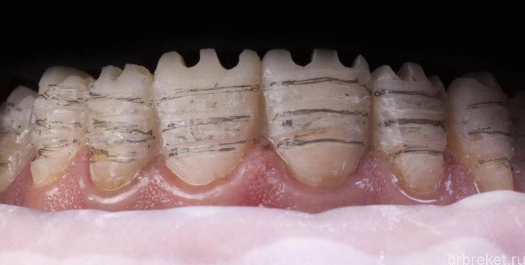 Основы препарирования зубов