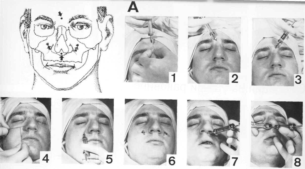 Лечение перелома берцовой кости