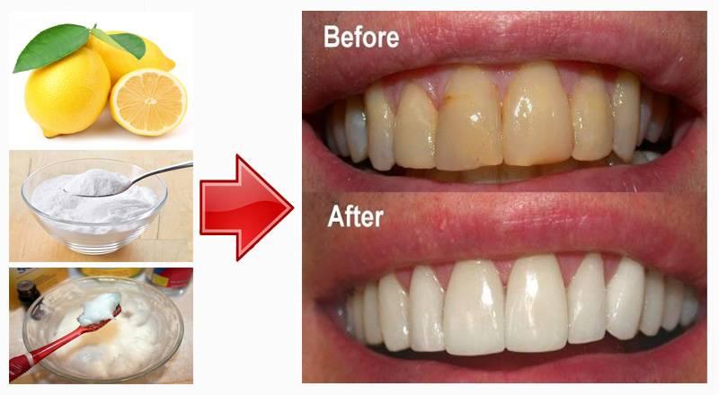 Чистка зубов содой: польза и вред, советы, рецепты и видео