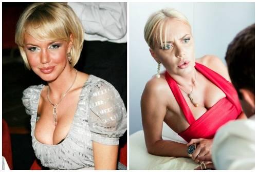 Малиновская маша до и после пластики, неудачная операция, внешность в 2017, почему она стала жертвой