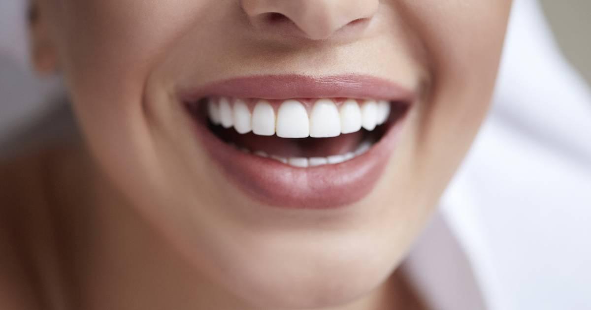 Как сделать голливудскую улыбку: описание методов и цена процедур