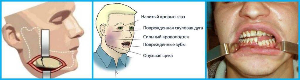 Перелом челюсти: месяц придется только пить имолчать
