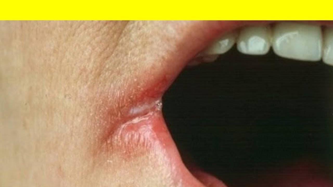 Почему у ребенка заеды в уголках рта