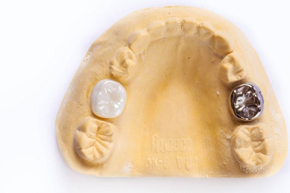 Протезирование молочных зубов — бесполезная роскошь или вынужденная необходимость?