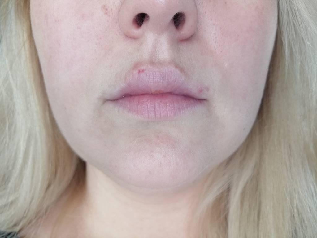 Синяки после увеличения гиалуроновой кислотой – чем лечить гематомы?