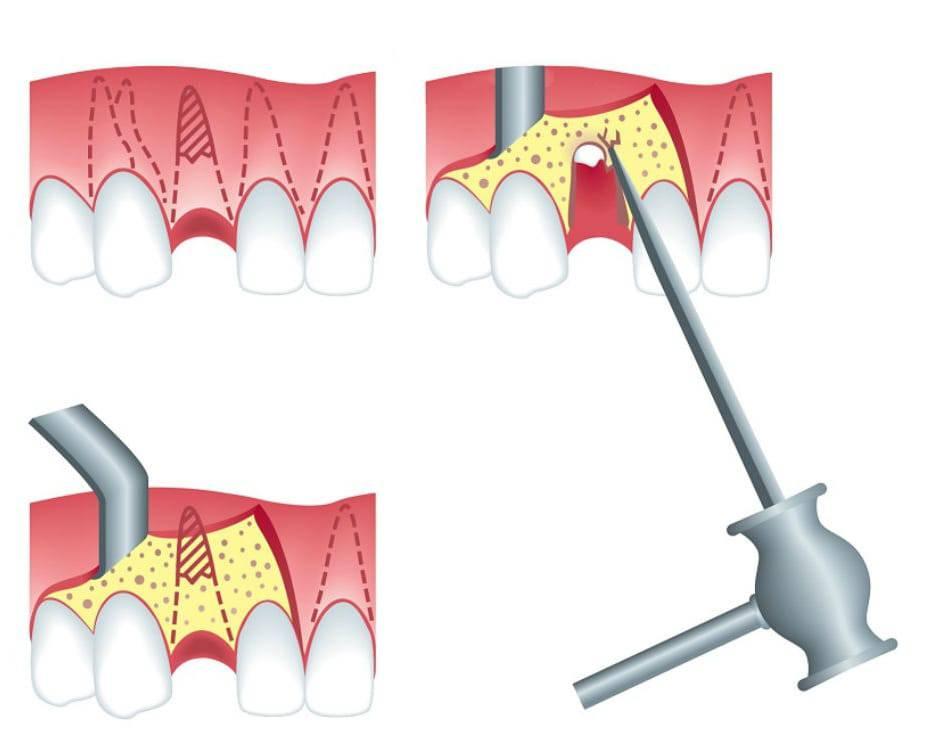Зачем стоматологу экскаватор? что такое сложное удаление зуба. сложное удаление зуба, последствия. противопоказания и показания