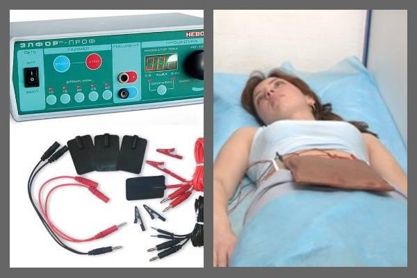 Применение физиотерапии при эндометриозе