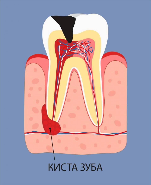 Что такое киста зуба? причины, симптомы, лечение