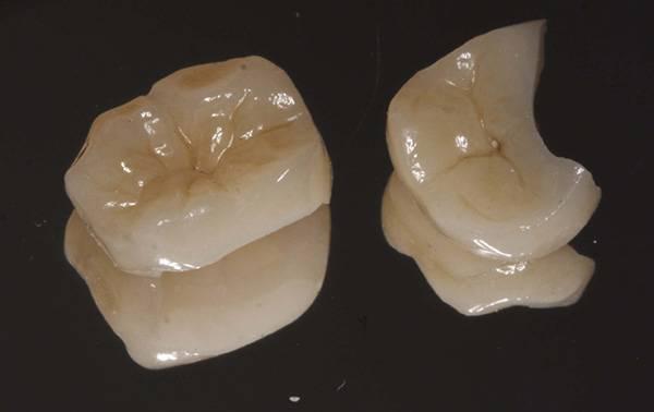 Есть ли повод для паники, и что делать если проглотил зубной протез