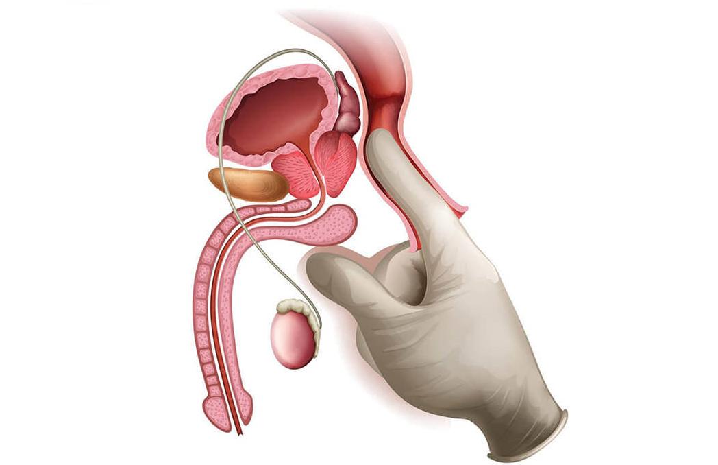 Какие у мужчин последствия от простатита как влияет простатит на микрофлору влагалища