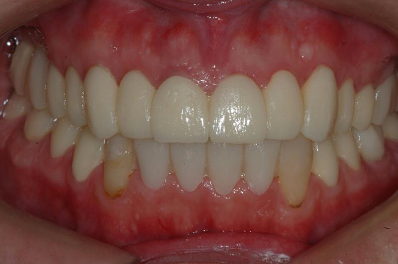 Основные провокаторы осложнений после протезирования зубов: как исправить неправильный прикус