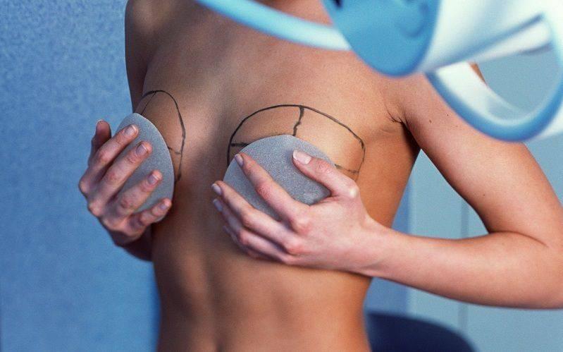 Как и сколько проходит реабилитация после маммопластики?