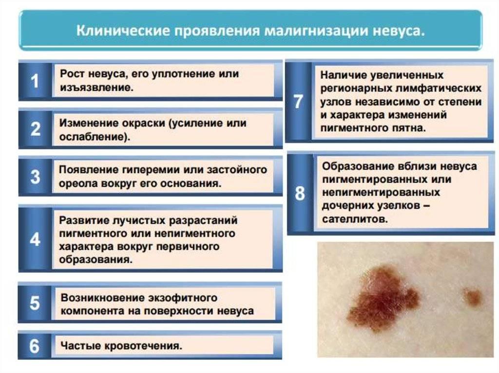 Предрак: виды, диагностика, симптомы и лечение предраковых заболеваний