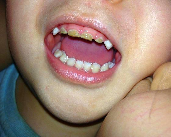 Как быть, если крошатся зубы: методы спасения рассказывают профессионалы
