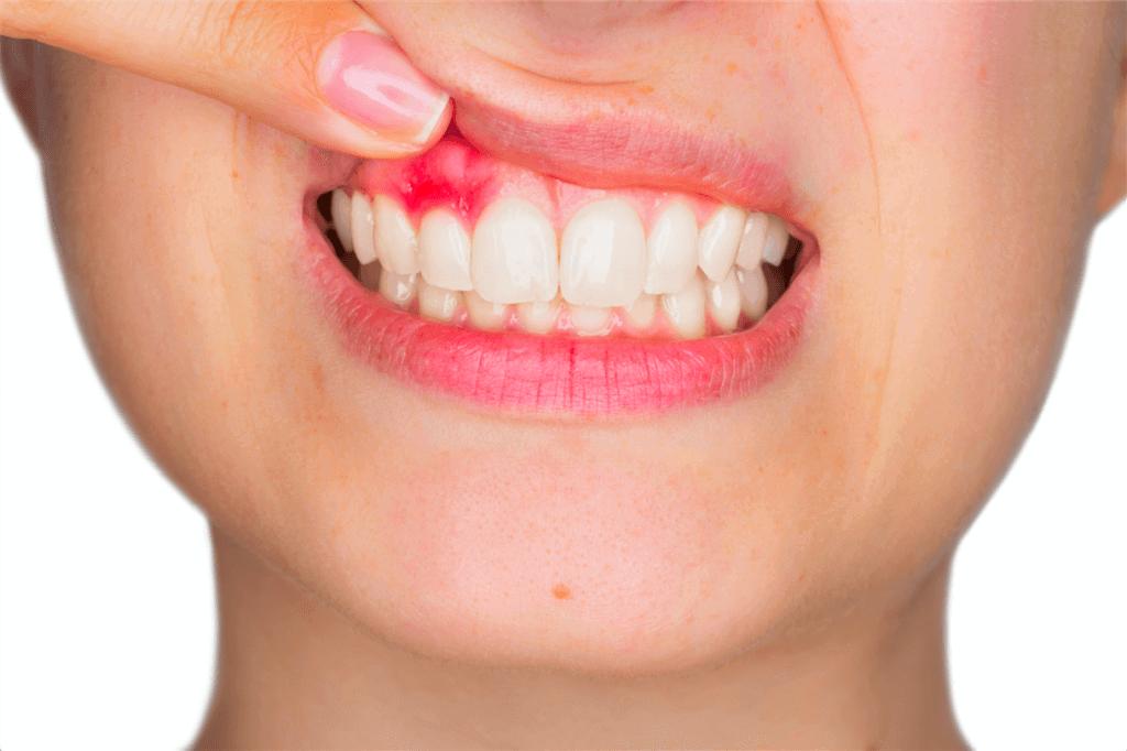 Лечение кисты зуба проверенными народными средствами