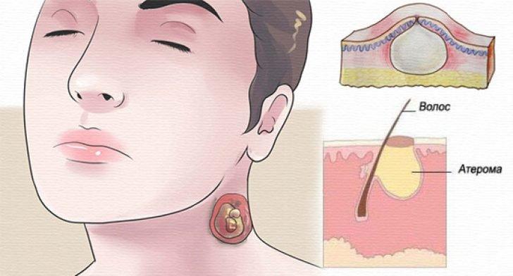 Атерома на голове лечение народными средствами