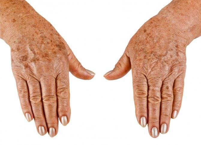 Причины появления белых пятен на коже, виды и методы лечения