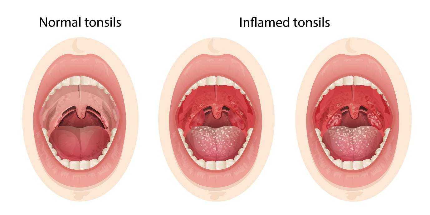 Рак язычной миндалины симптомы