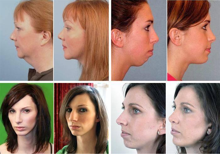 Маленькая нижняя челюсть: признаки, методы лечения у детей и взрослых