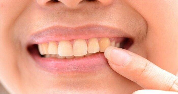 Желтые зубы у ребенка 7 лет причины и лечение комаровский