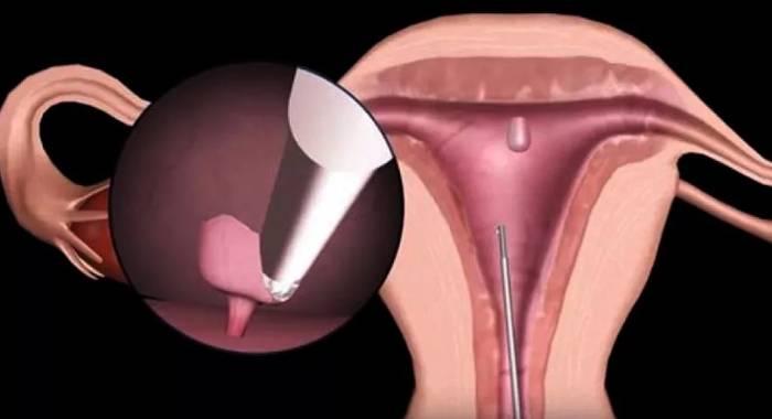 Гистология полипа матки после его удаления