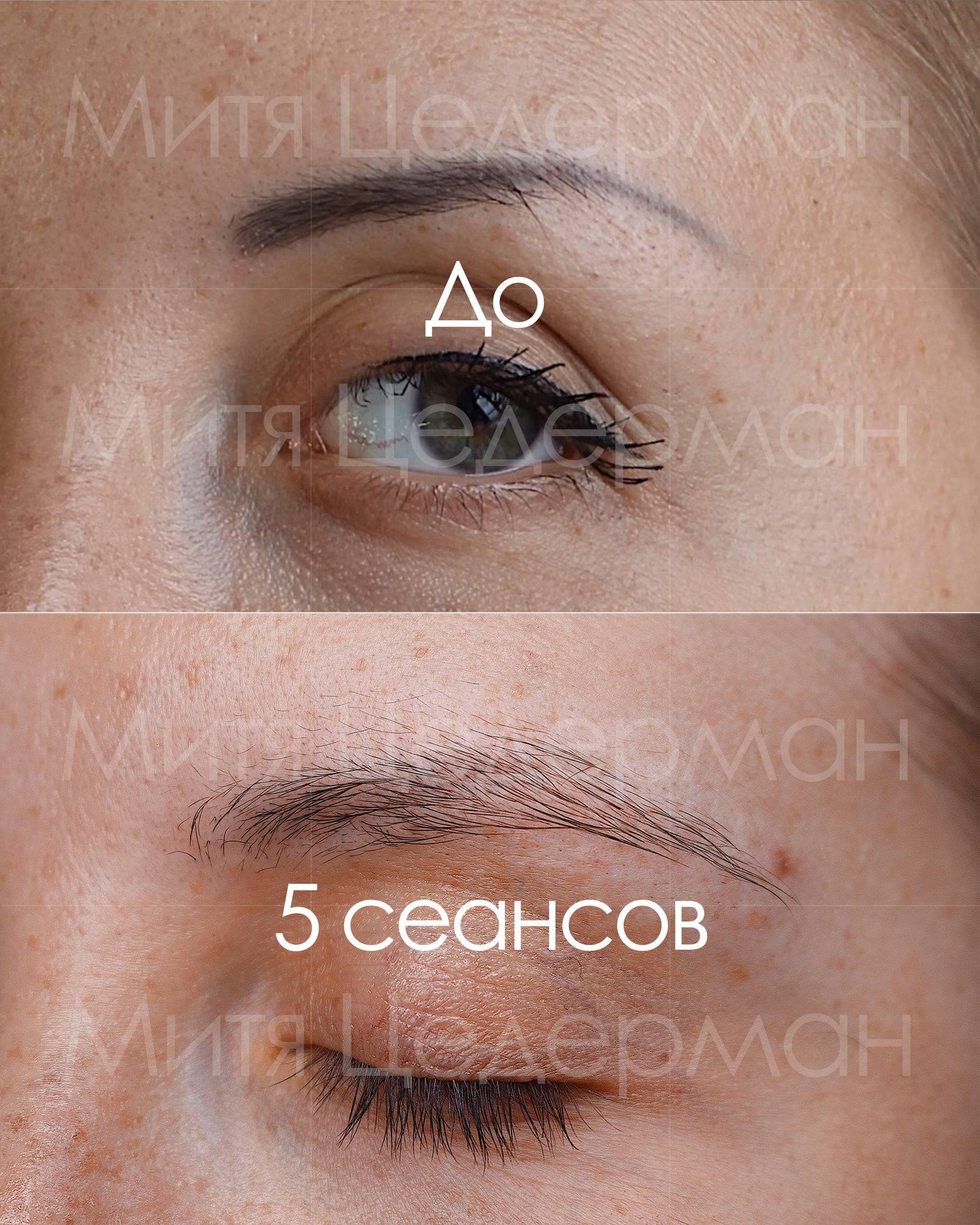 Как проводится удаление перманентного макияжа ремувером?