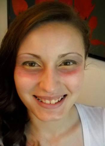 Аллергия только на лице причины