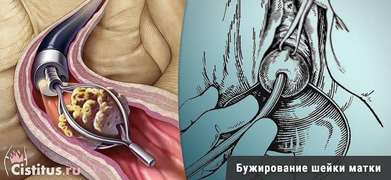Заращение цервикального канала симптомы. бужирование цервикального канала