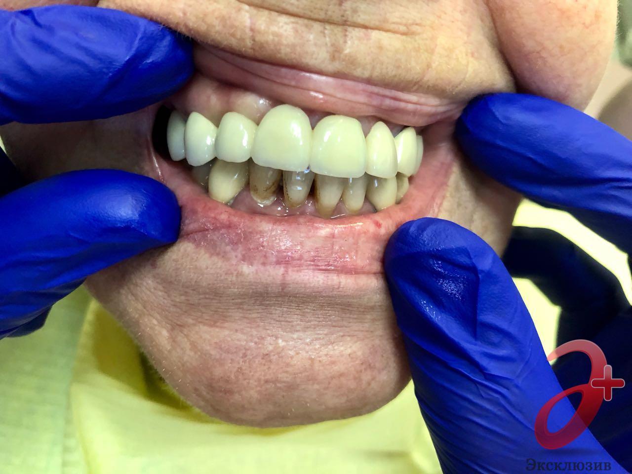 Керамические зубные протезы особенности ремонта и восстановления скола керамики
