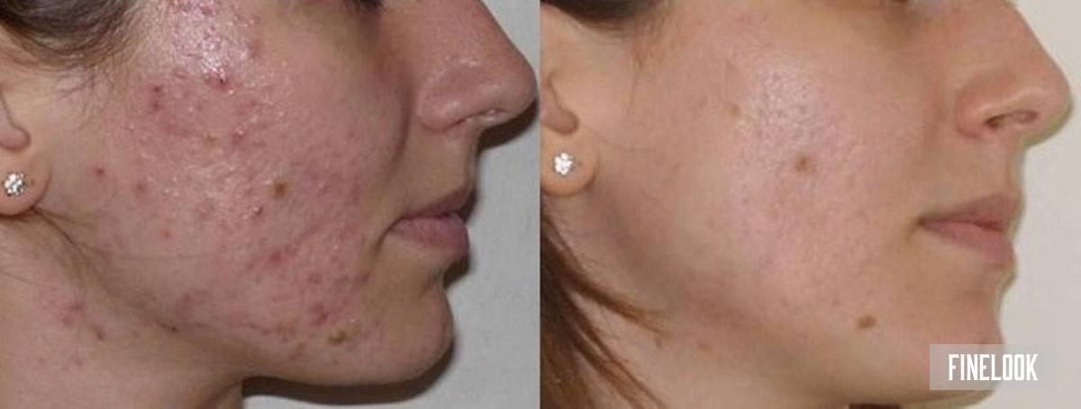 Дарсонваль от сосудистых звездочек – при куперозе на лице, техника и отзывы
