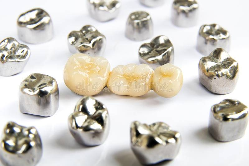 Цельнолитые коронки на зубы: виды (с напылением и без, с облицовкой), плюсы и минусы и отличия от штампованных