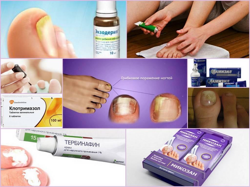 Эффективные лекарства от грибка ногтей на руках