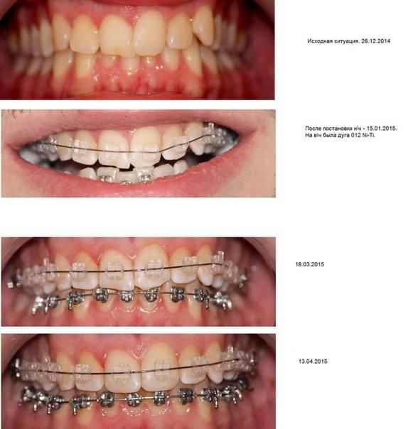 Как долго болят зубы после установки брекетов