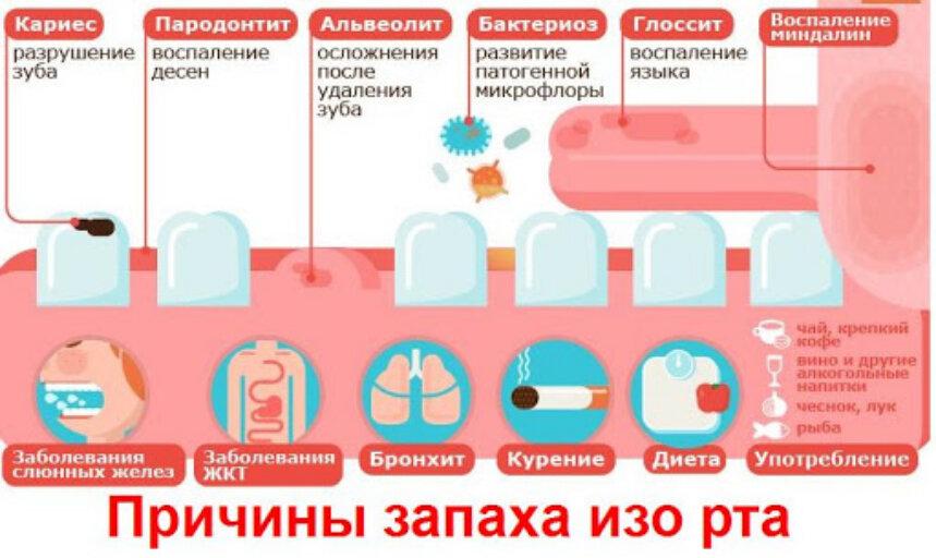Неприятный запах после месячных, причины, выделения после месячных с неприятным запахом
