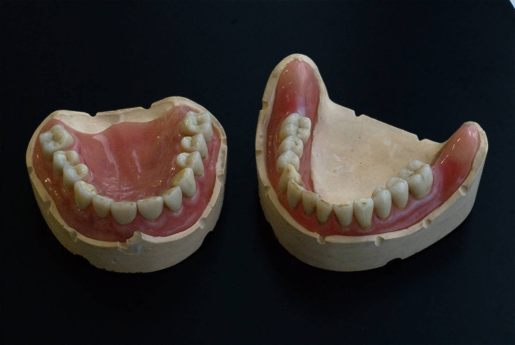 Улучшение качественных характеристик зубного протеза с помощью армирования