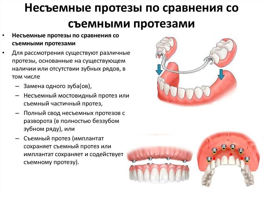 Как правильно сделать выбор: съемные или несъемные зубные протезы?