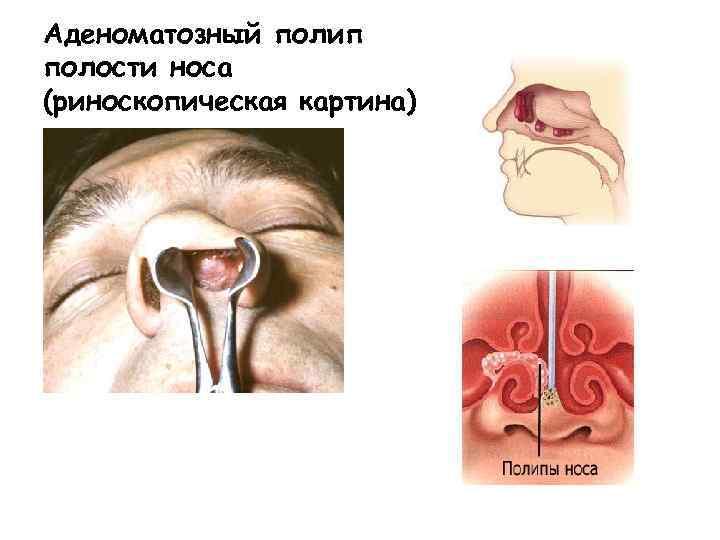 Безоперационные способы лечения полипов в носу, народная медицина