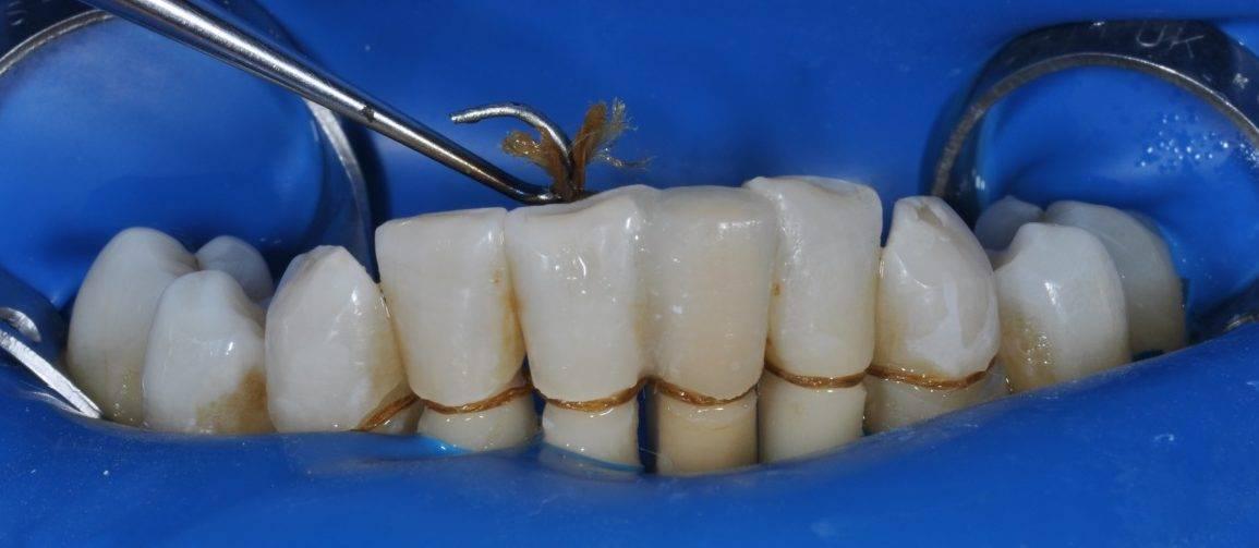 Шинирование подвижных зубов: как сохранить шатающиеся зубы