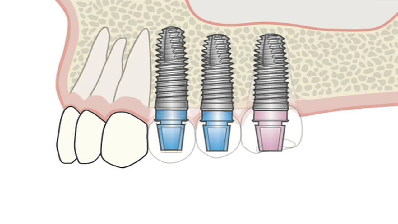 Csm импланты – надежная и недорогая замена элементов зубного ряда