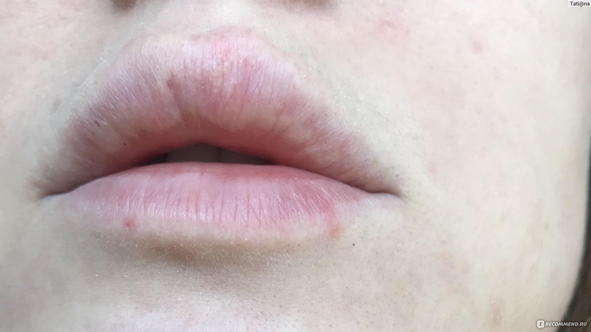 Симптомом какого заболевания являются белые точки на губах и как их убрать
