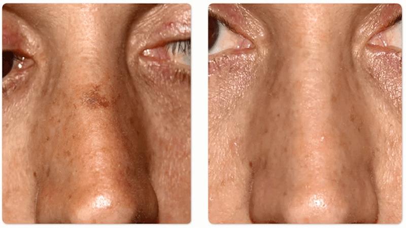 Лазерное удаление веснушек: фото до и после