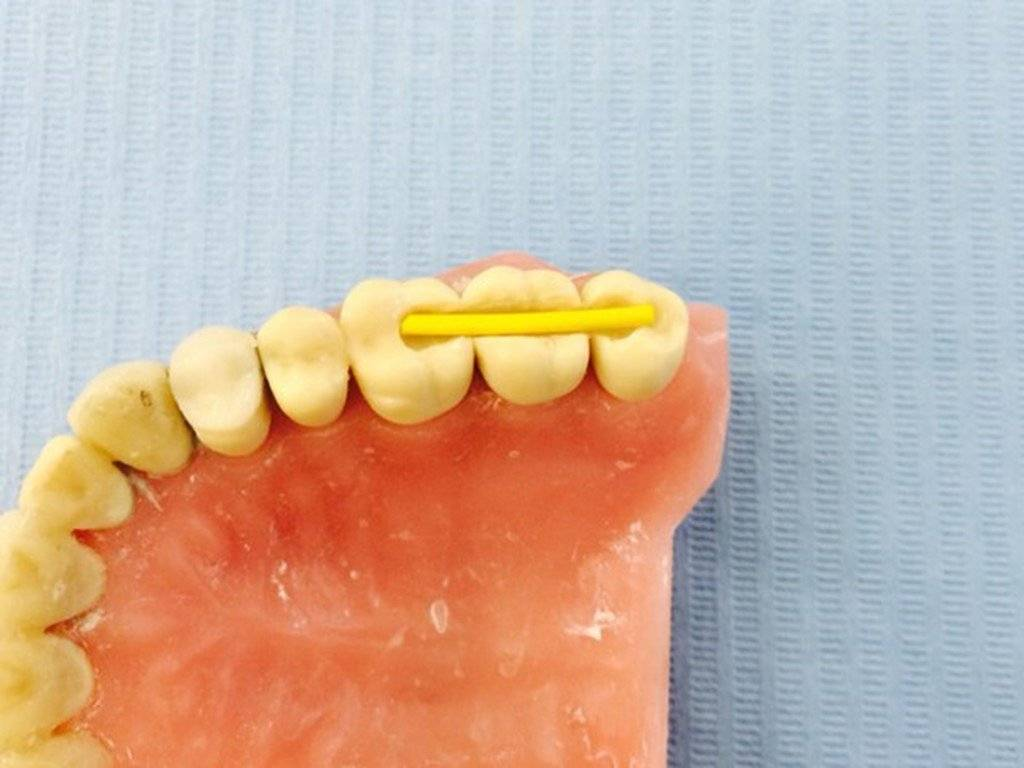 Шинирование зубов: виды, показания и противопоказания