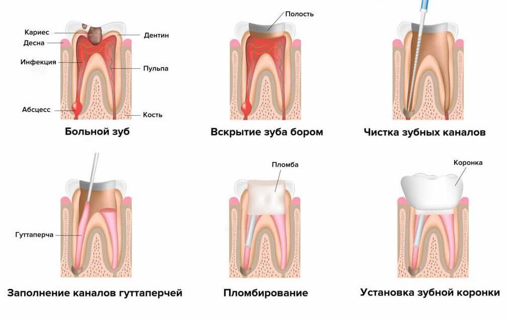 Пульпит: основные симптомы с фото, диагностика и лечение зуба в стоматологии