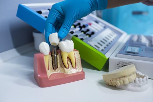 Возможно ли проведение имплантации зубов при диабете
