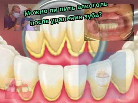 Можно ли пить алкоголь перед стоматологом